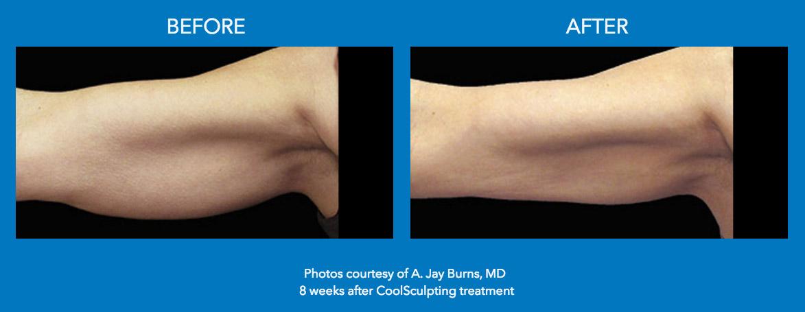 Coolsculpting fat reduction in Lucknow | Medisculpt Klinic